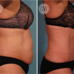 Tummy tuck + 360 liposuction
