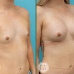 Breast Augmentation 260cc dual plane anatomical implants