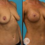 Breast Augmentation 375cc dual plane round implants