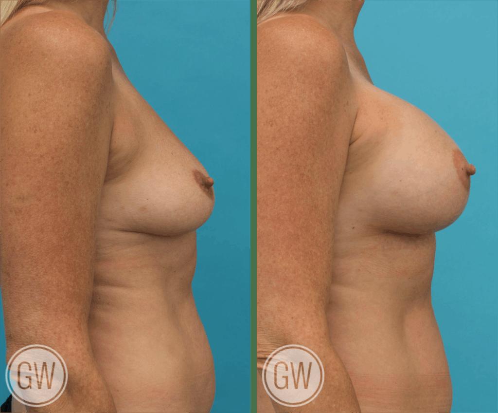 Breast Augmentation 450cc dual plane round implants
