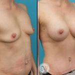 Breast Augmentation 375cc dual plane round implants + Tummy tuck