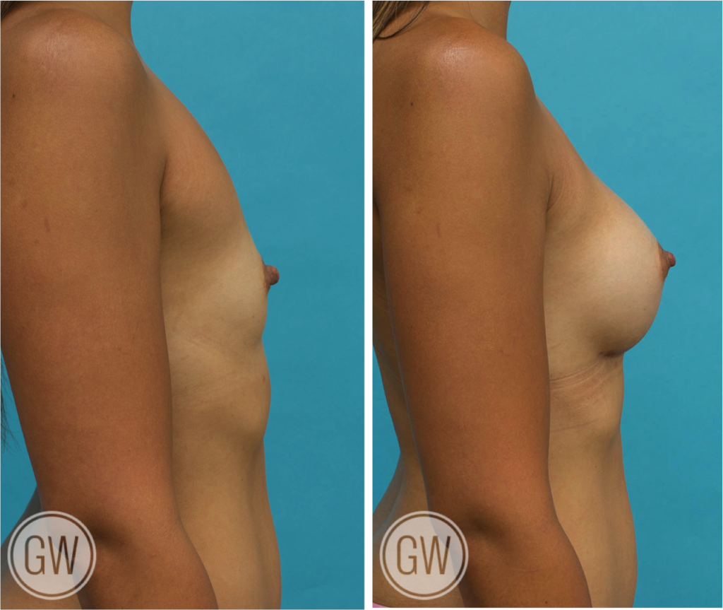 Breast Augmentation 350cc dual plane round implants