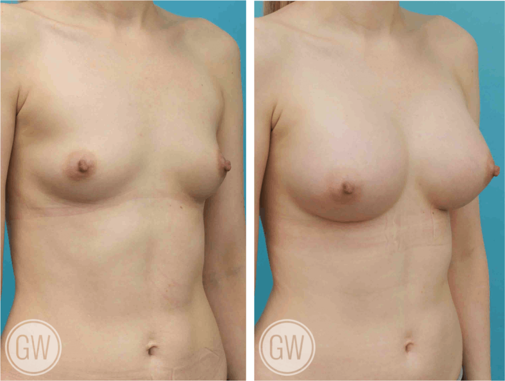 Thank Breast augmentation cost in asheville nc where can