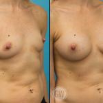 Breast Augmentation 275cc dual plane round implants