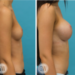 Breast Augmentation 425cc dual plane round implants