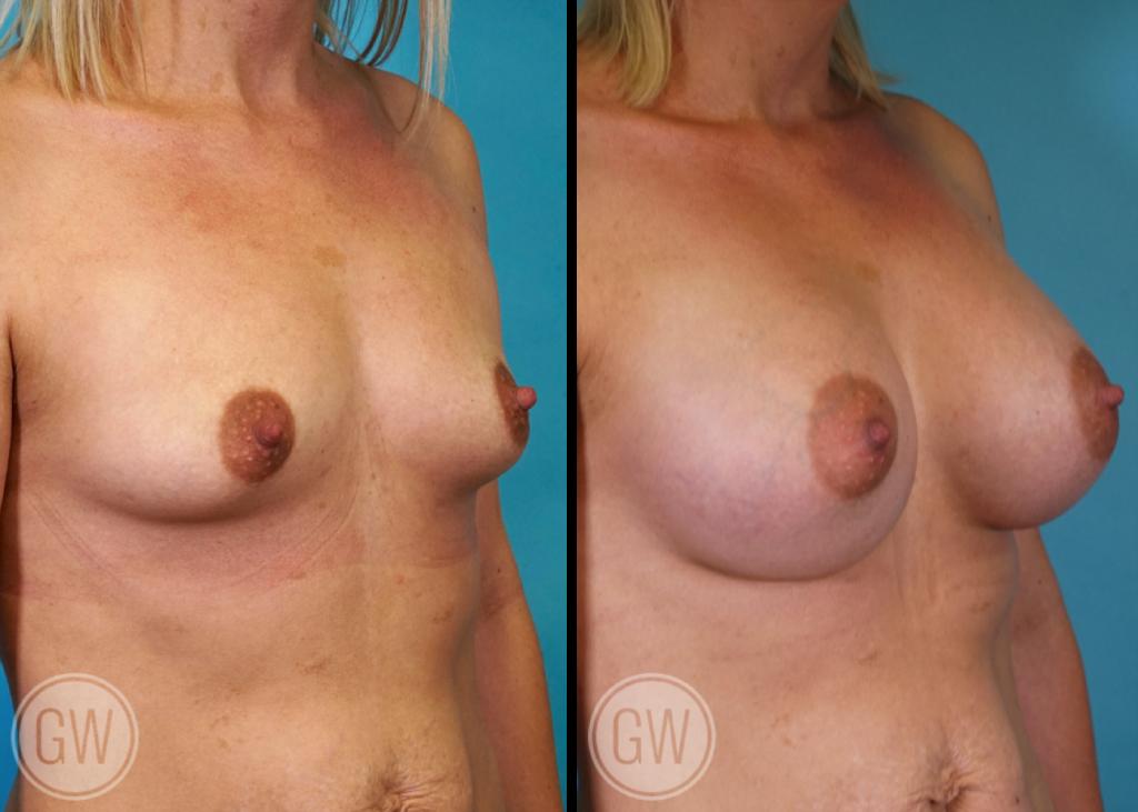 Breast augmentation 480cc dual plane round implants