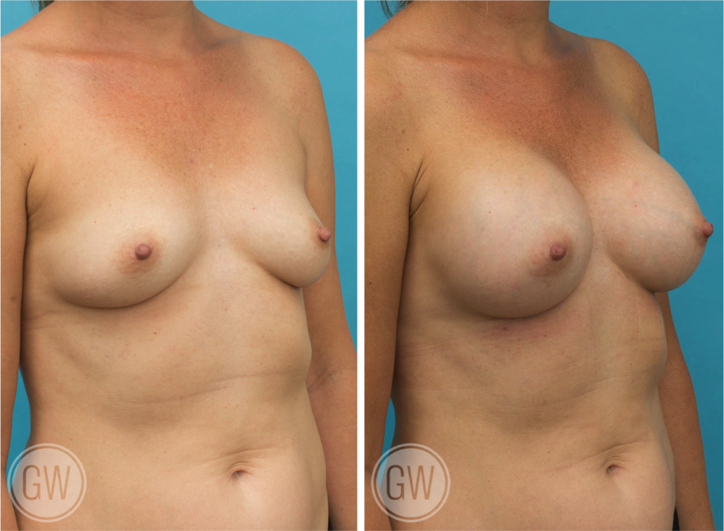 Breast Augmentation - Dual plane 375cc high profile round implants