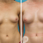Breast Augmentation 375cc dual plane anatomical implants