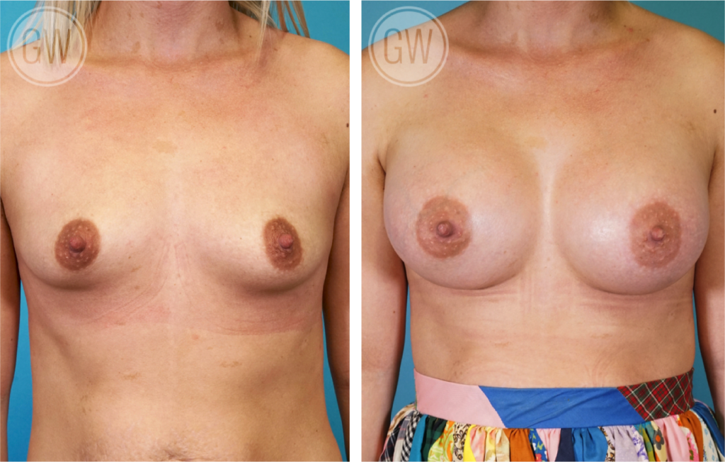 Breast implant perth, breast augmentation perth, breast reduction perth, breast lift perth, perth breast augmentation, breast enlargement perth, breast implants perth prices, breast surgery perth, perth breast implants, breast implants perth cost, breast implants perth wa, breast enhancement perth, breast implants in perth, breast augmentation perth wa, breast augmentation in perth