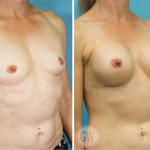 Breast Augmentation 250cc dual plane round implants