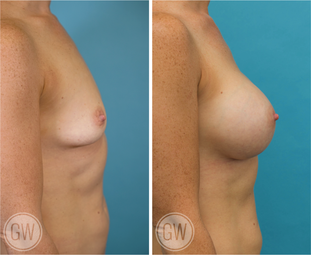 Breast Augmentation 455cc dual plane round implants