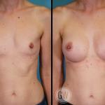 Breast Augmentation 325cc dual plane round implants