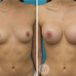 Breast Augmentation 275cc dual plane round implants