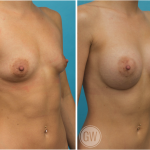 Breast Augmentation 350cc dual plane round implants
