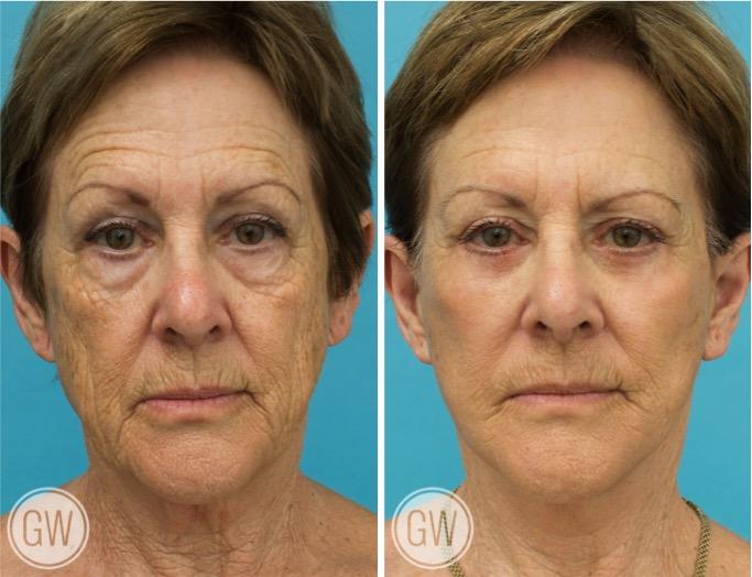 Facelift + Necklift + Lower eyelids + Temporal lift + 35% TCA peel