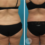 Tummy Tuck + Buttock Lift