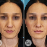 Rhinoplasty + Septoplasty