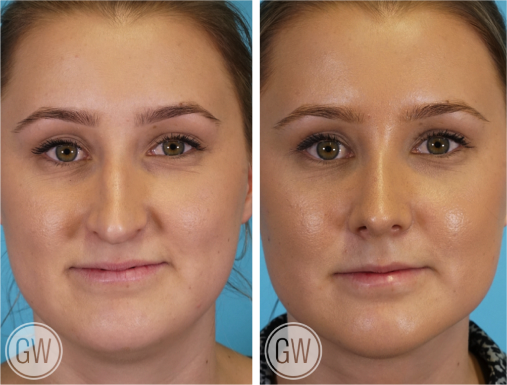 Rhinoplasty + Neck Liposuction