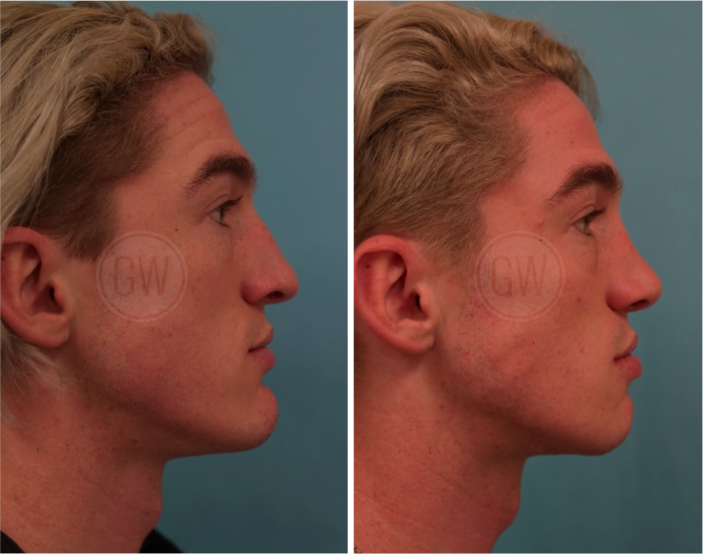 Dr Guy Watts Plastic Surgeon Perth | Gallery | Chin Reduction