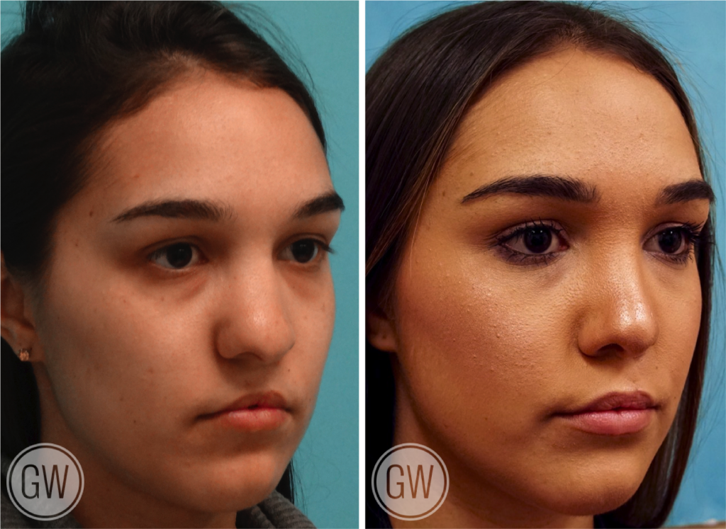 Cleft Rhinoplasty + Upper Lip Fat Grafting