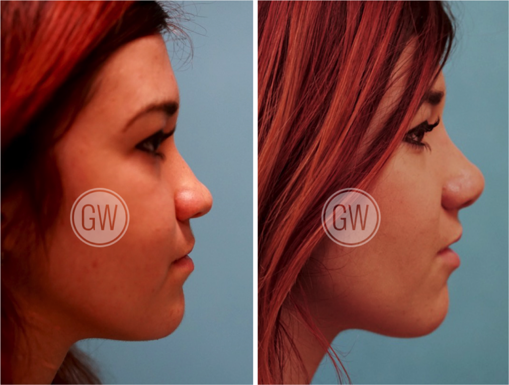 Cleft Rhinoplasty + Septoplasty + Lip Revision