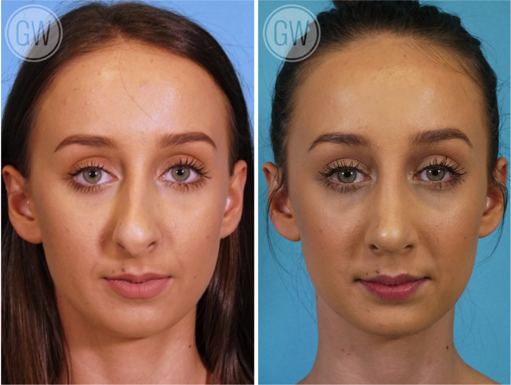 Nose surgery, Rhinoplasty, septoplasty