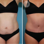 Tummy tuck + Liposuction abdomen and flanks