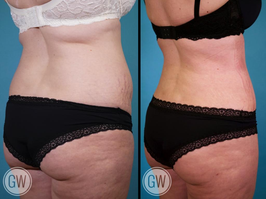 Abdominoplasty + Circumferential Liposuction