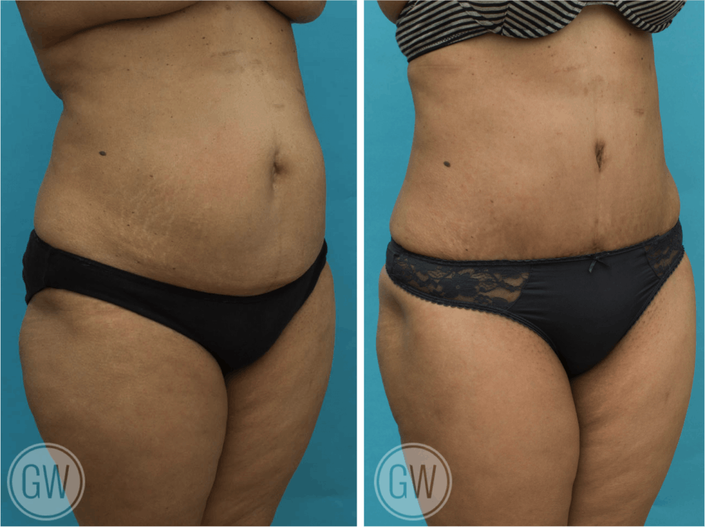 Tummy tuck + 360 liposuction including lateral thighs