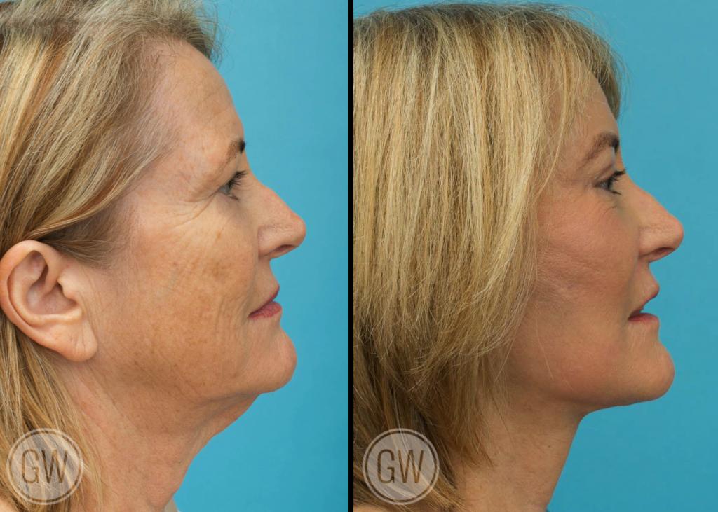 Temporal brow lift + Upper blepharoplasty + Facelift + Necklift + TCA peel