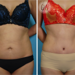 Asian Tummy tuck