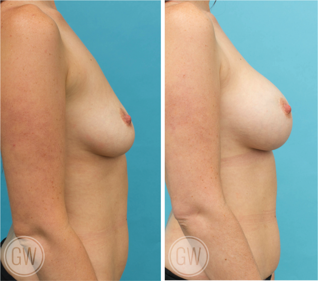 Asymmetrical breast implants - 375cc right 425 left dual plane round implants