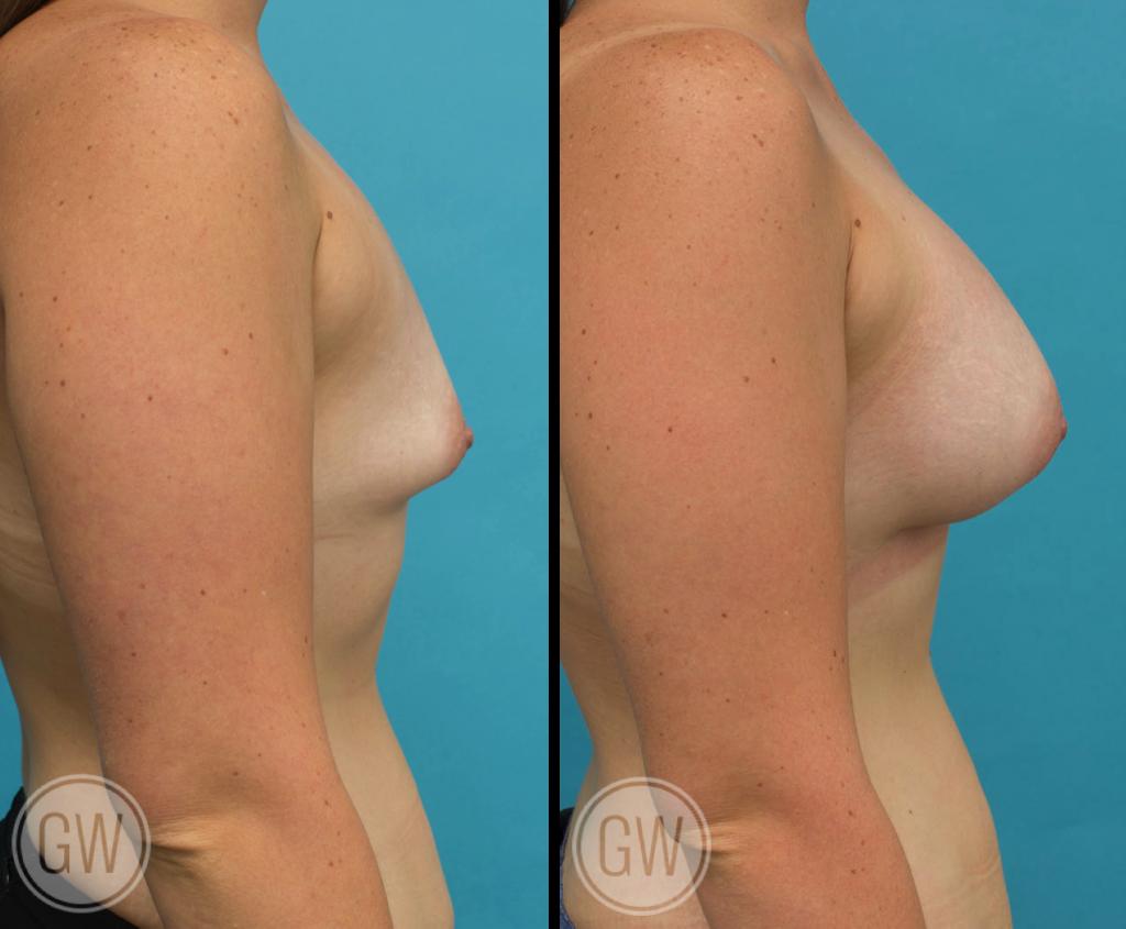 Breast augmentation 395cc dual plane anatomical implants