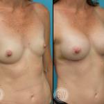 Breast augmentation 295cc dual plane anatomical implants