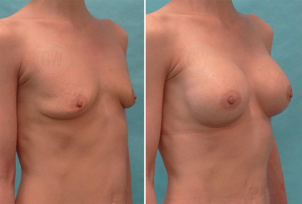 Primary breast augmentation: 245ml moderate height, moderate projection anatomical implants, dual plane, IMF incision.