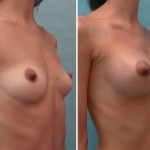 Primary breast augmentation: 325ml round implants, dual plane, periareolar incision
