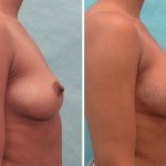 Primary breast augmentation: 275ml left, 300ml right, round, dual plane, periareolar incision.