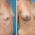 Breast Augmentation 295cc dual plane anatomical implants