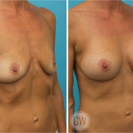 Breast Augmentation 325cc dual plane round implants