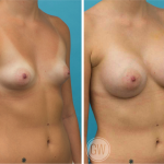 Tuberous Breast - Breast Augmentation 325cc dual plane round implants
