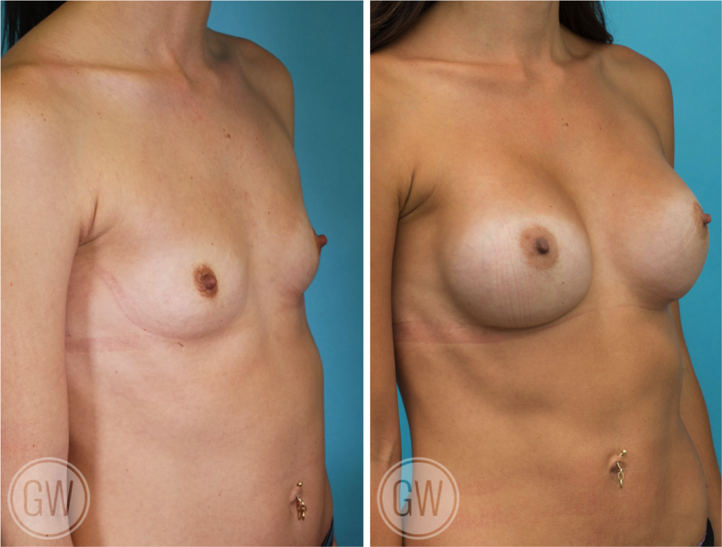 Breast Augmentation 350cc dual plane round high profile implants