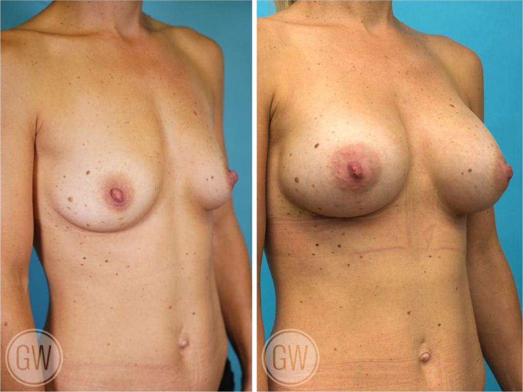 Breast Augmentation 300cc dual plane round implants