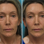 Facelift + Necklift + Lower Eyelid Surgery