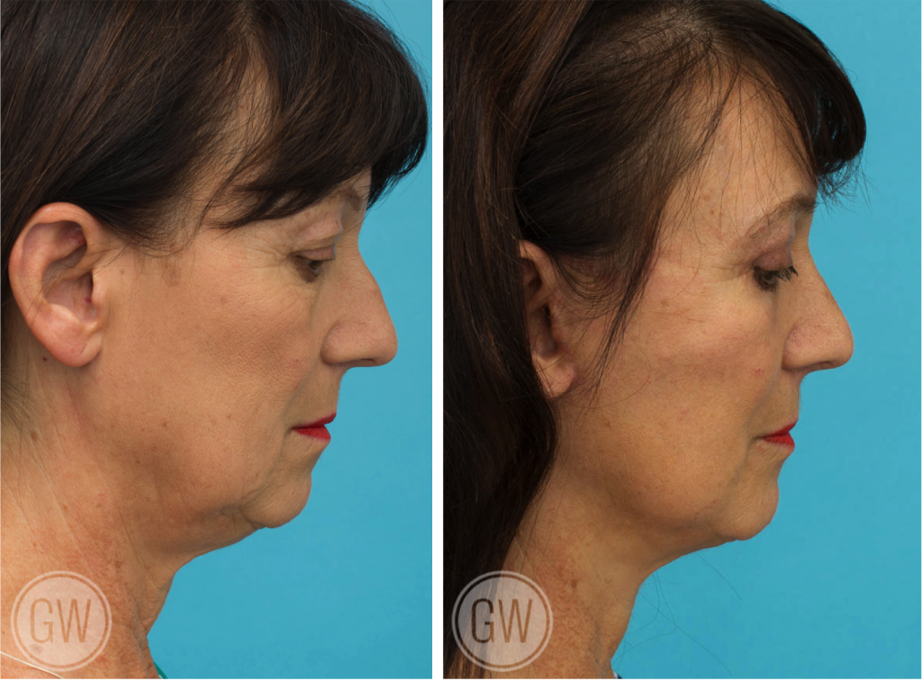 Facelift + neck lift + upper and lower eyelid surgery