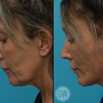 Facelift + Necklift + Lower Eyelid Surgery