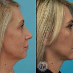 Facelift + Necklift + Upper + Lower Eyelid Surgery