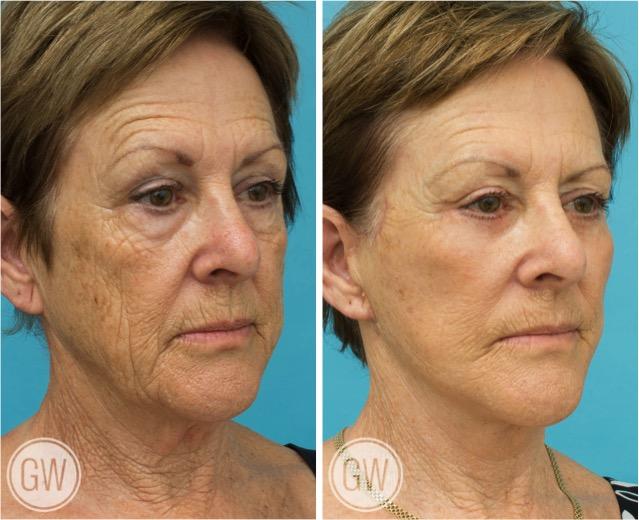 Facelift + Necklift + Lower eyelids + Temporal lift + TCA peel