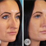 Rhinoplasty + Septoplasty + Lower Eyelid Blepharoplasty