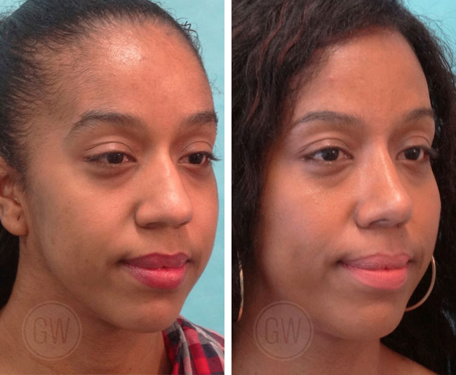 Reduction Rhinoplasty + Alar base reduction