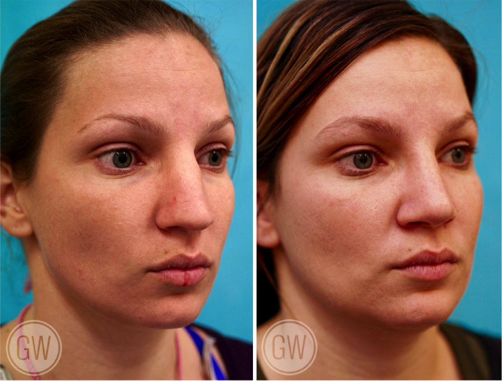 Rhinoplasty + Septoplasty + Turbinate Reduction